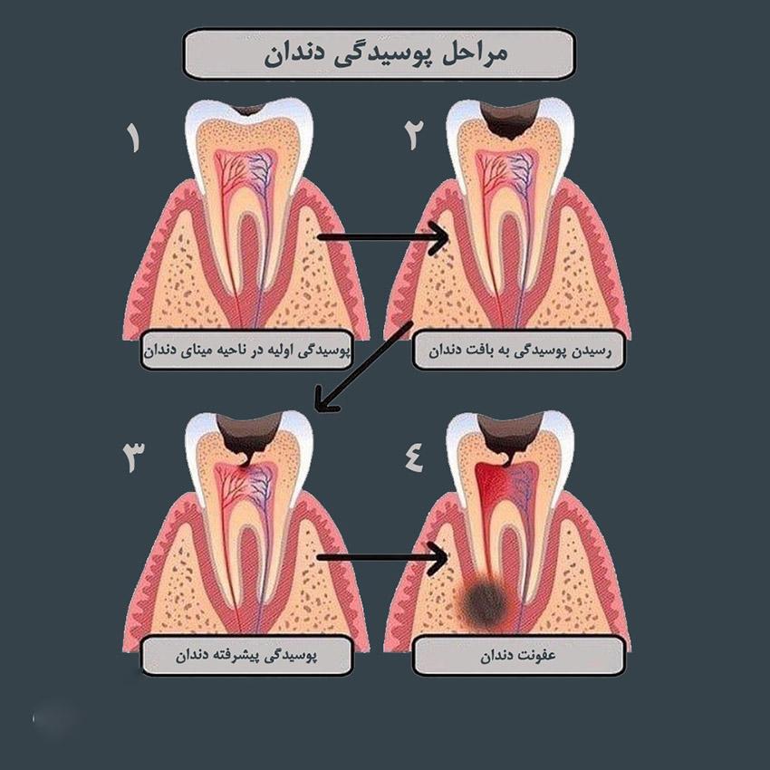 پوسیدگی عاج دندان