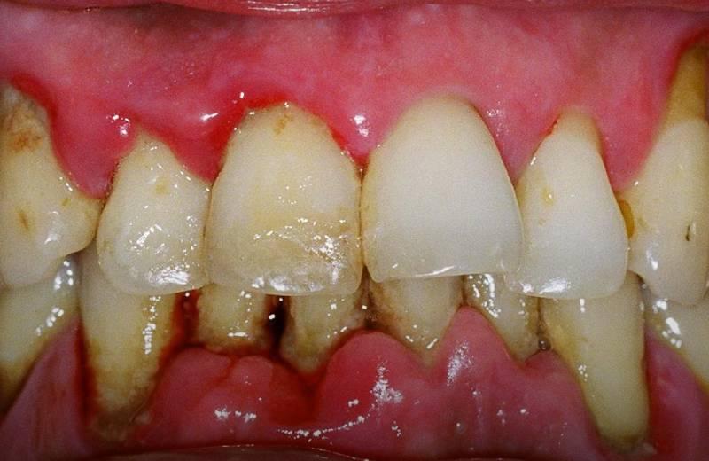 عدم رعایت بهداشت دندان عامل تحلیل لثه