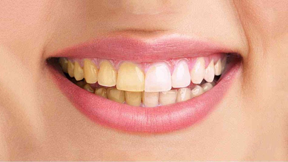 تفاوت لمینت و بلیچینگ دندان