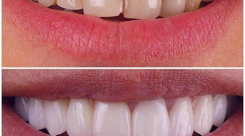 هزینه لمینت و بلیچینگ دندان